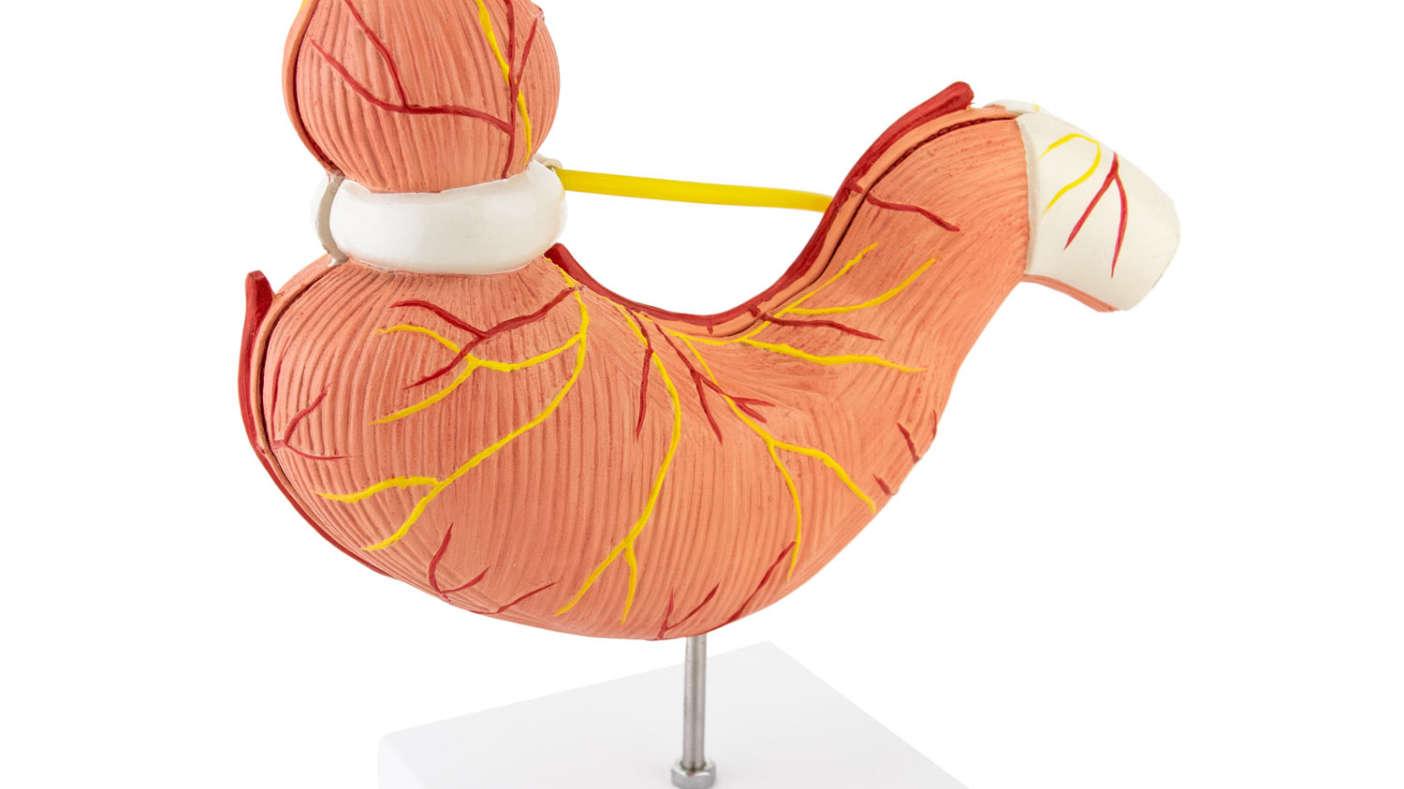 Virtuele maagband bij HVNL